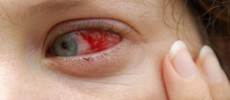 La salud ocular se verá afectado en el mes de abril.