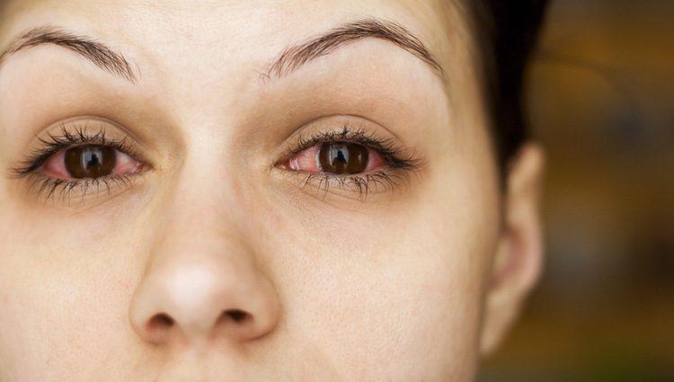 Durante este mes posiblemente sufras alguna enfermedad como por ejemplo una infección en los ojos