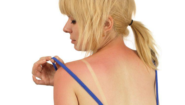 Ten cuidado con el sol y protege siempre tu piel